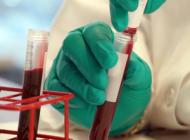 Progrese în îngrijirea pacienților hemofilici, însă tratamentul este în continuare insuficient