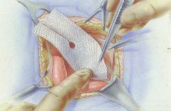 A cinea ediție a Conferinței Naționale a Asociației Române de Chirurgia Peretelui Abdominal