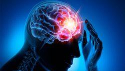 Mai puține tratamente pentru epilepsie în țările cu venituri mici