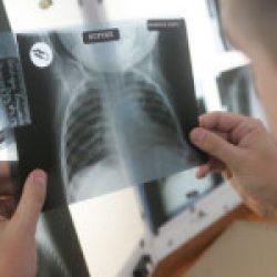 România, în continuare a 6-a țară ca incidență a tuberculozei în Regiunea OMS Europa