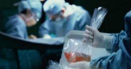 Numărul donatorilor de organe în România, în scădere
