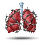 Utilizarea Superimposed High Frequency Jet Ventilation în bronhoscopia intervențională